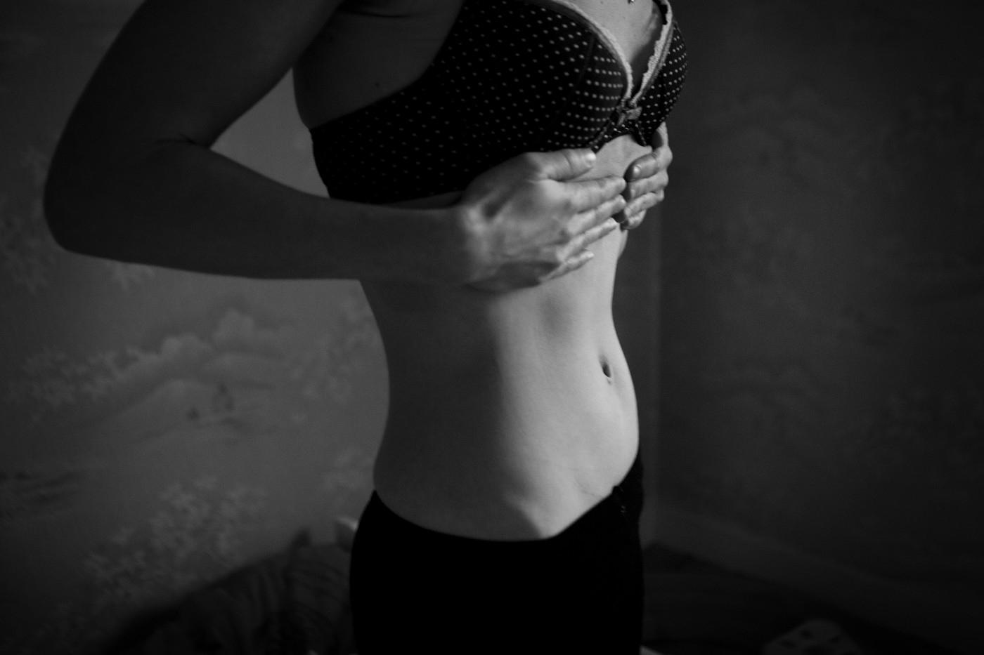 fogyás tippek anorexiás