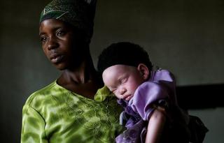 """""""Levadásznak minket, mint az állatokat."""" – az afrikai albínók sokkoló története"""