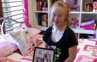 Modellszerződést kapott a Down-szindrómás lány