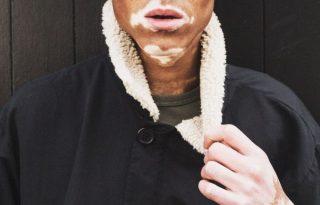 Modellként dolgozik a vitiligós fiú