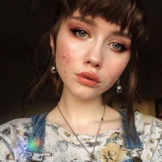 Súlyos aknéval küzdő lányok az Instagram sztárjai