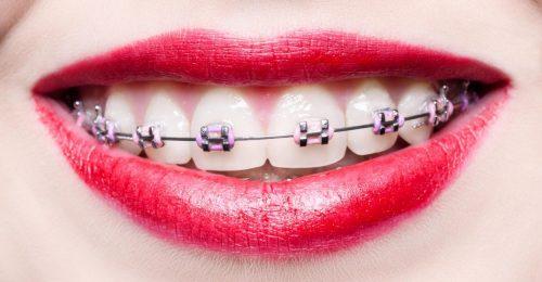 Milyen az élet a fogszabályzóval?