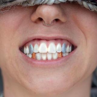 A színezett fogaknál őrültebb trendről nem hallottunk idén