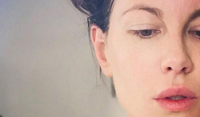 Katy Perry és sztárok sokasága esküszik a fitymaszérum erejére