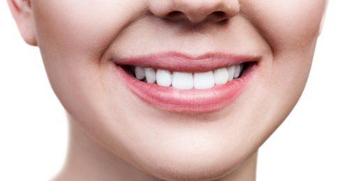 Fogfehérítés fogszabályozás után