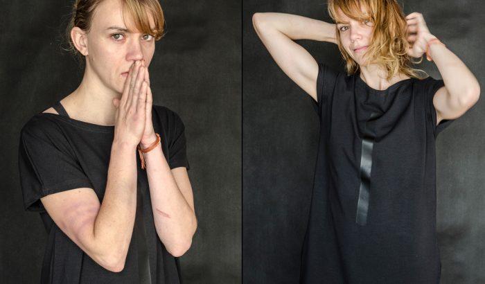 Megrázó kampánnyal hirdeti a nők elleni erőszak világnapját a magyar fotós