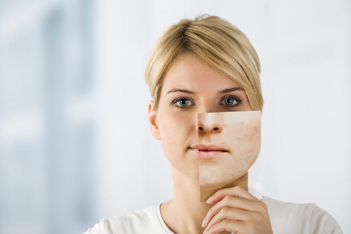 Így ápold a tág pórusú bőröd | Marie Claire