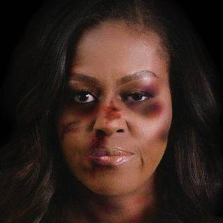 Összevert Michelle Obama és Angela Merkel áll ki a családon belüli erőszak áldozataiért