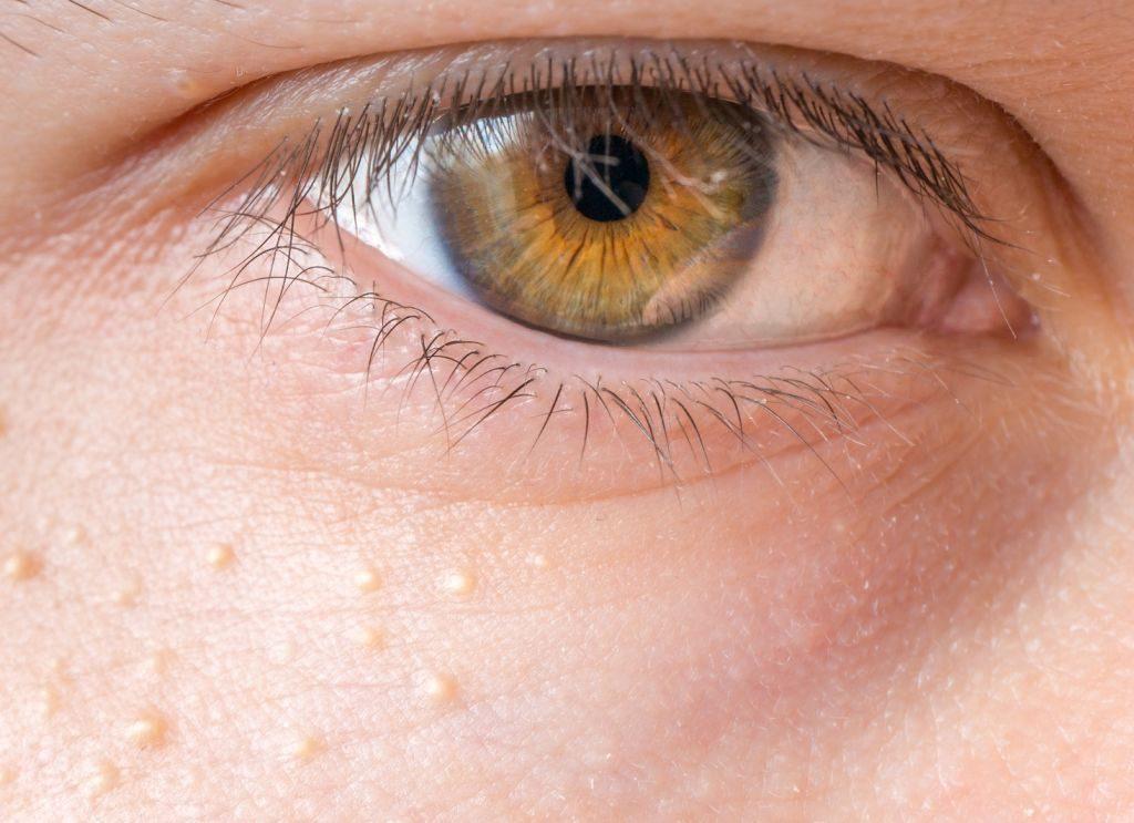 Cukorbetegsgem s pikkelysömöröm van hogyan lehet eltávolítani a pangó vörös foltokat az arcon
