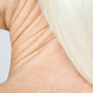 Olvadó maszkok a zavaró ráncok és a bőrelváltozások ellen