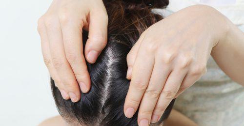 A nyár legizgalmasabb fejbőr-frissítőjét teszi elénk az Omorovicza