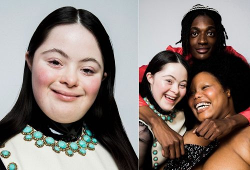 18 éves Down-szindrómás lány a Gucci új szempillaspirál-modellje