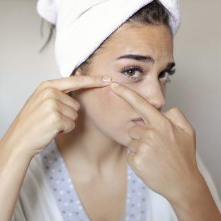 Ezeket a vitaminokat szedd, ha pattanásos a bőröd