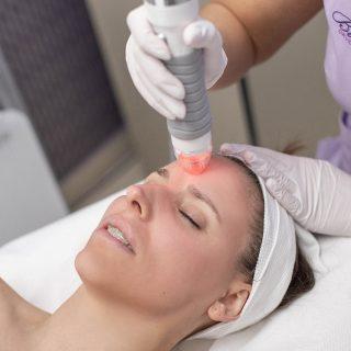 Műtét nélküli arcfiatalítás? VIVACE kezelés a megoldás!