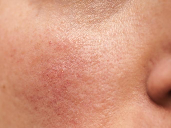 rosacea bőr probléma