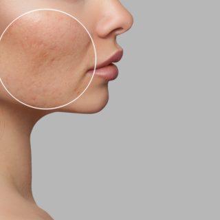 Elkészült az aknés bőr laboratóriumi változata