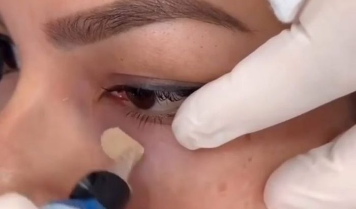 Korrektortetoválás tüntetheti el a szem alatti sötét karikákat