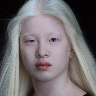 Xueli Abbing: így lett az elhagyott kisbabából keresett modell