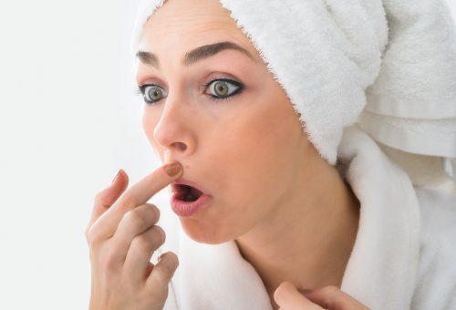 6 tipp, hogy eltüntesd a száj körüli pattanásokat