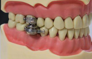 Vissza a középkorba: fogyasztó- vagy kínzóeszköz a szájkapocs?