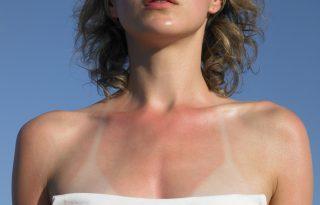 A bőrgyógyász tippjei: ez segít, ha leégtél