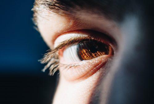 Szemész vagy plasztikai sebész végezze a szemhéjplasztikát?